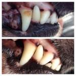 beforeandafterteeth